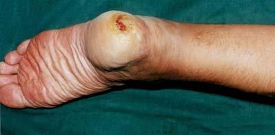 некроз пальца при диабете