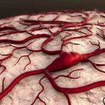 Диабетическая ангиопатия — как повышенный сахар влияет на сосуды?