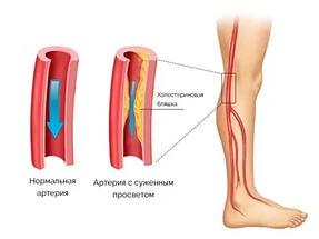 angiopatiya-2