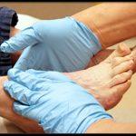 Можно ли победить отеки ног при сахарном диабете?