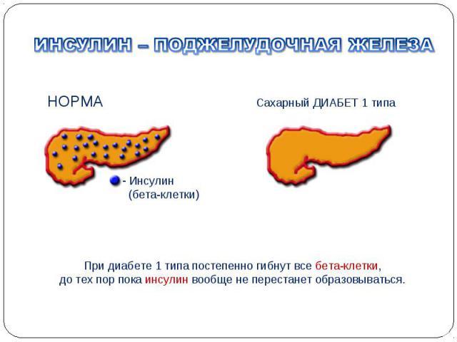 Панкреатит лечение при диабете 2 типа