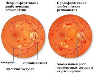 retinopatiia-2