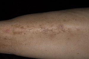 Признаки на кожи