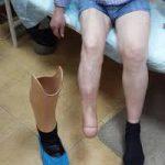 Ампутация ноги при сахарном диабете: предотвращаем осложнения