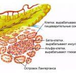Лекарственный диабет и его проявления